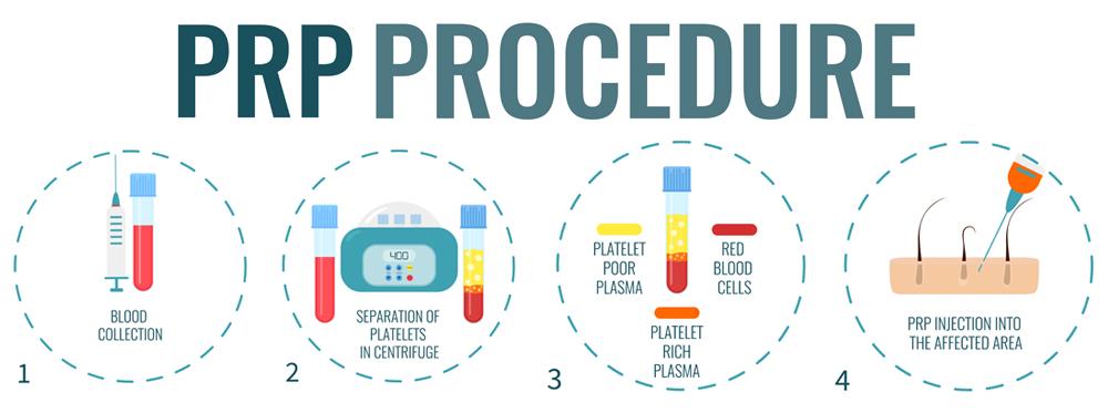 paletet rich plasma injection therapy mt gravatt medical doctor pain management